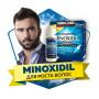 MINOXIDIL - рост волос и бороды